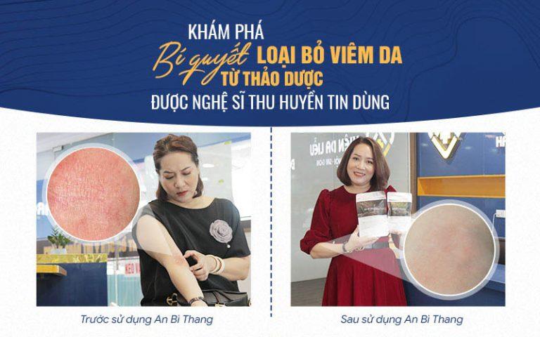 Làn da của nghệ sĩ Thu Huyền đã được cải thiện rõ rệt chỉ sau 2 tháng tới Trung tâm Da liễu Đông y Việt Nam điều trị viêm da cơ địa