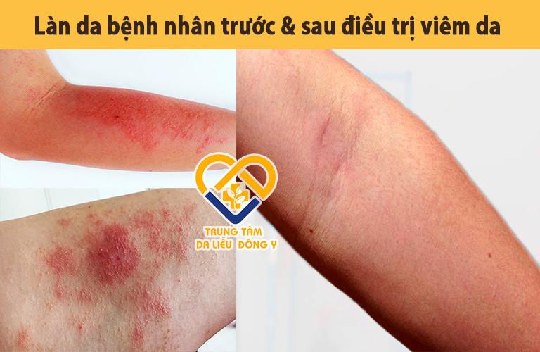 Tình trạng viêm da của anh Hùng trước và sau điều trị bằng An Bì Thang