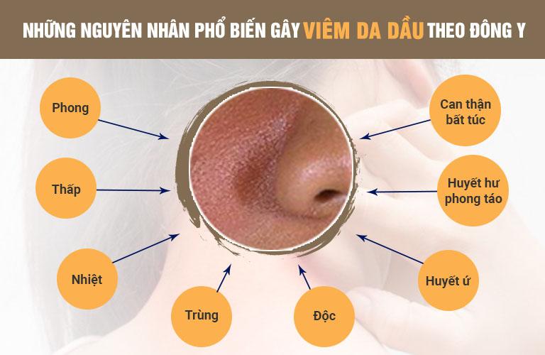 Đông y tìm ra cách giải quyết viêm da dầu dựa vào việc tác động đến các yếu tố gây bệnh bên trong