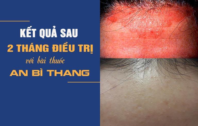 Hình ảnh trước và sau điều trị của chị Mai Lan với bài thuốc An Bì Thang