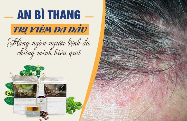 Bài thuốc điều trị viêm da dầu An Bì Thang