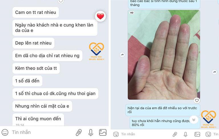 Bệnh nhân viêm da tiếp xúc gửi phản hồi đến Trung tâm Da liễu Đông y Việt Nam