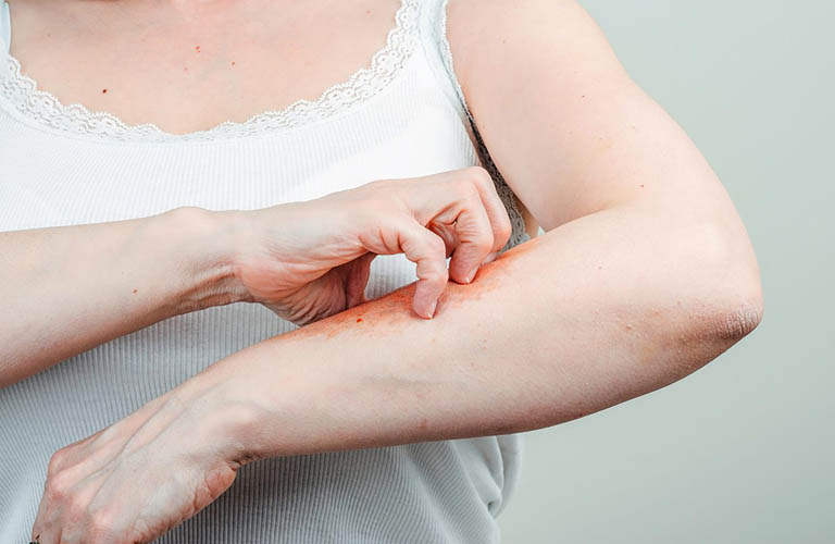 Nổi mề đay khi mang thai khiến cho nhiều thai phụ lo lắng