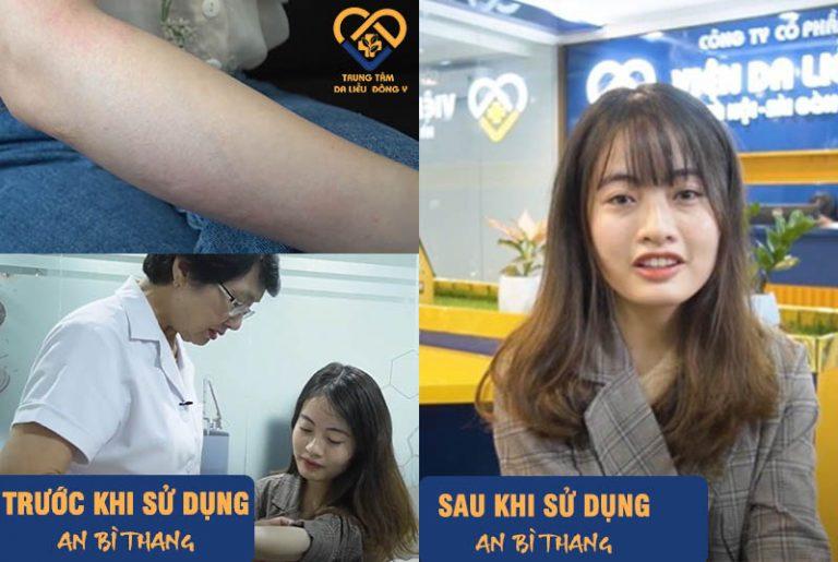 Tình trạng mề đay của Mỹ Linh được cải thiện đáng kể sau 2 tháng sử dụng An Bì Thang