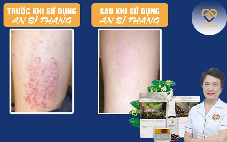 Tình trạng da sau khi bệnh nhân điều trị với An Bì Thang