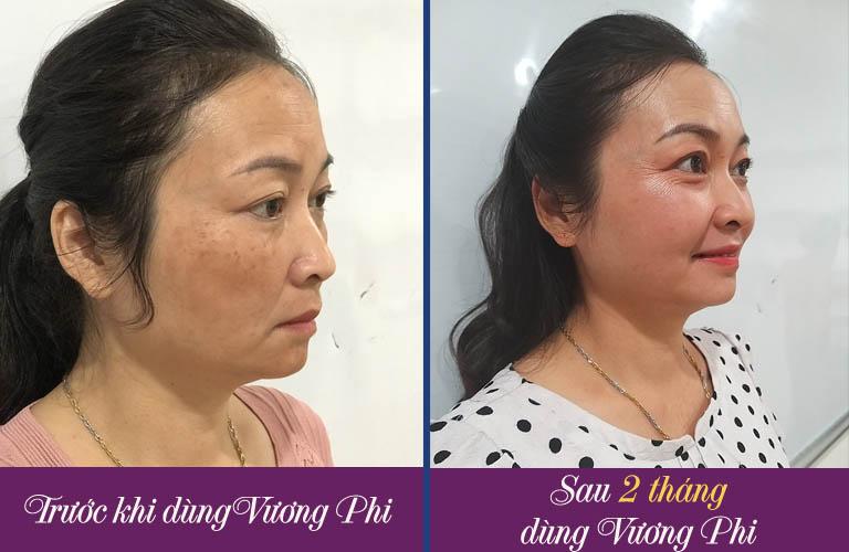 Kết quả sau 2 tháng điều trị nám với Bộ sản phẩm Vương Phi của tôi