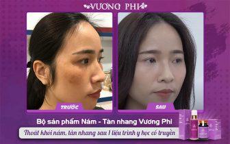 Hình ảnh trước và sau điều trị nám, tàn nhang với bộ sản phẩm Vương Phi
