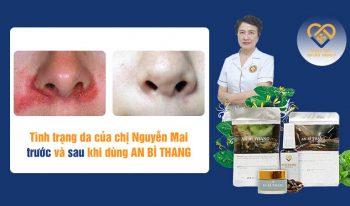 Hình ảnh trước và sau điều trị của chị Nguyễn Mai