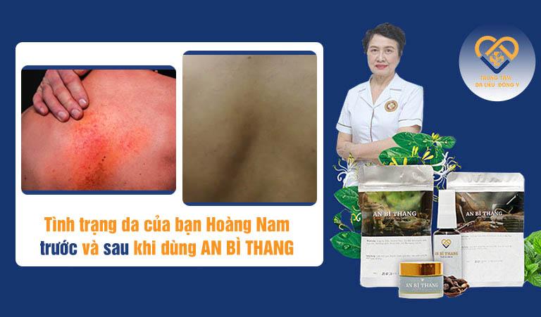 Hình ảnh trước và sau điều trị viêm da dầu ở lưng của bạn Hoàng Nam