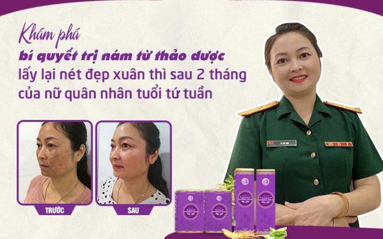 Thiếu tá Tạ Thị Vân đã không còn lo lắng vì nám má lâu năm