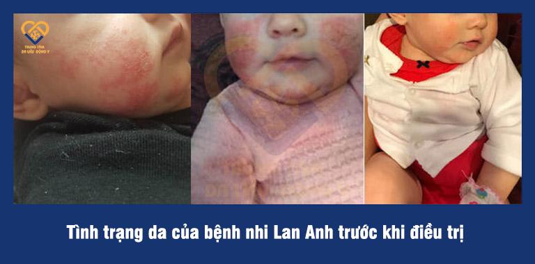 Bé Lan Anh bị viêm da dị ứng nặng nhất ở vùng mặt