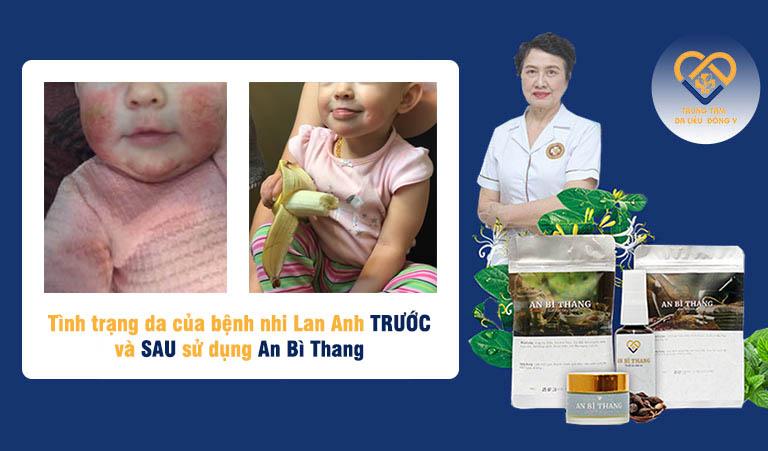 Sau 3 tháng dùng An Bì Thang, tình trạng viêm da dị ứng của bé Lan Anh đã được xử lý hoàn toàn