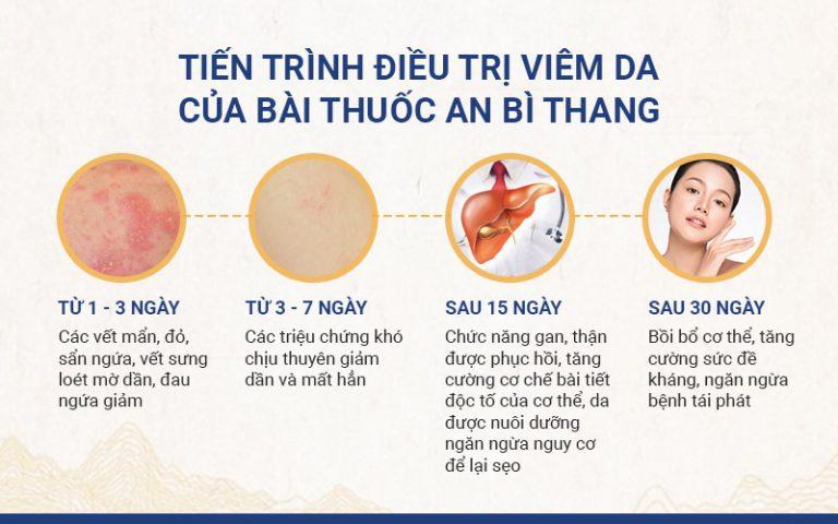 Lộ trình điều trị viêm da qua các giai đoạn cụ thể với bài thuốc An Bì Thang