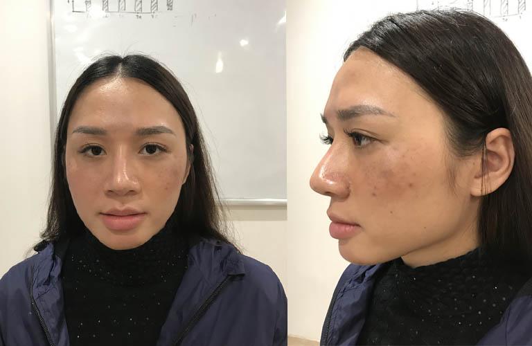 Tình trạng nám, tàn nhang trước đây của chị Thu Hương