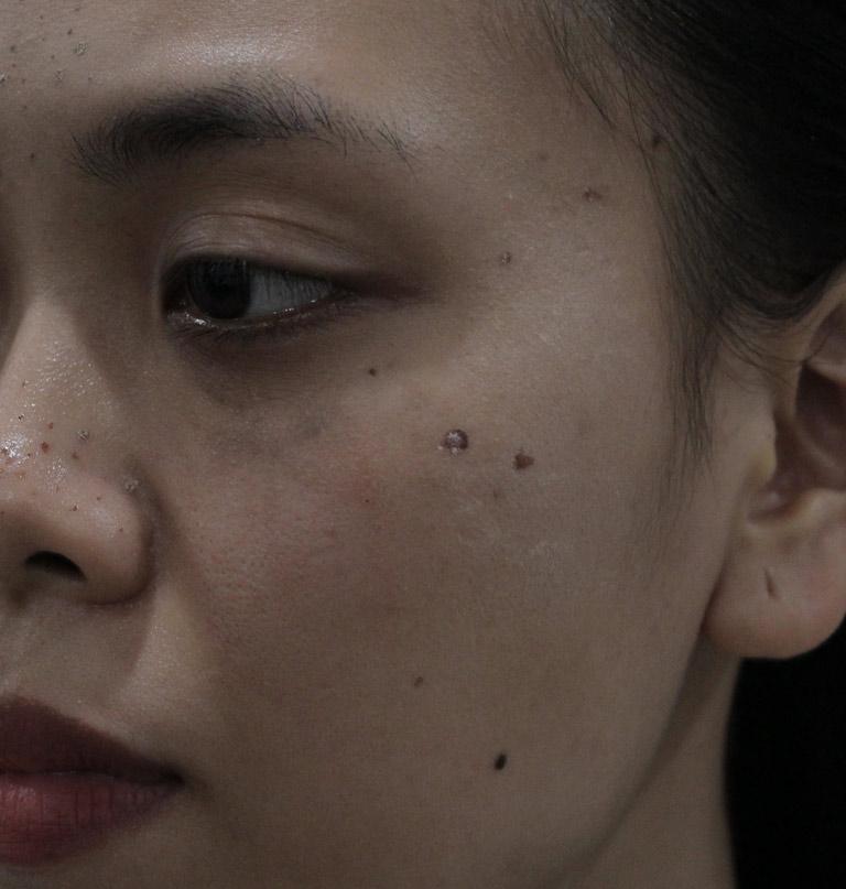 Dù đã áp dụng khá nhiều phương pháp khác nhau nhưng tình trạng của chị Trang cũng không được cải thiện nhiều