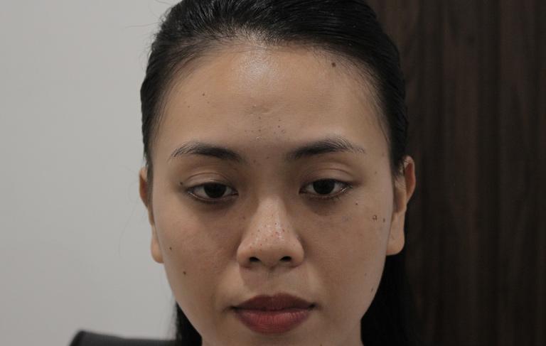 Làn da sần sùi, xuống sắc vì mụn trứng cá của chị Trang