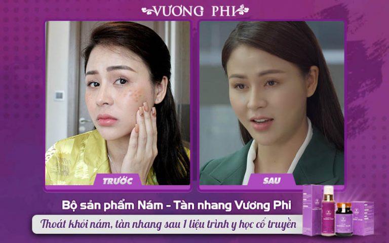 Diễn viên Lương Thu Trang trước và sau khi sử dụng BSP Vương Phi