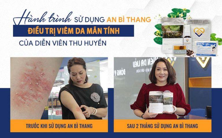 """Nghệ sĩ Thu Huyền """"hồi sinh"""" làn da sau điều trị viêm da mãn tính bằng bài thuốc An Bì Thang"""