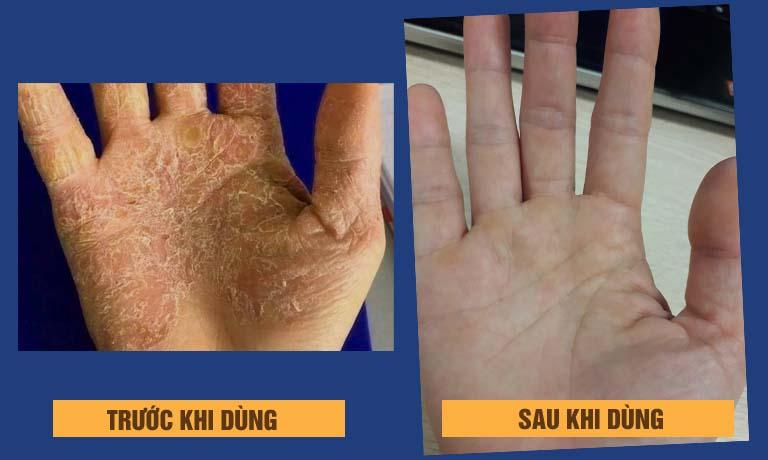 Trước và sau khi dùng An Bì Thang của chị Thu Minh