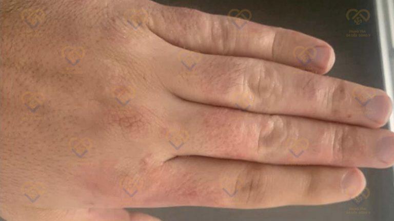 Sau xử lý tổ đỉa ở bàn tay, da không hề bị sẹo hay thâm