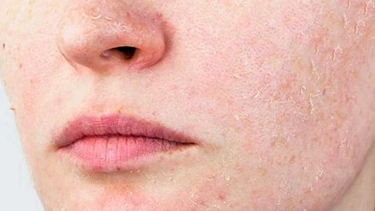 Bong tróc da sau laser ở dạng vụn nhỏ, không thành từng mảng