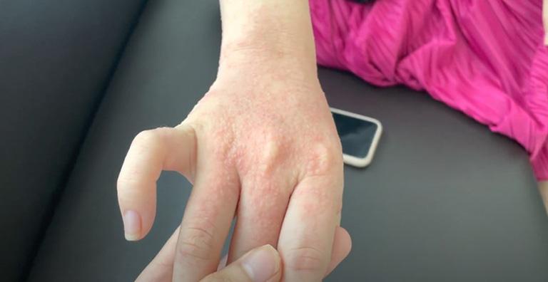 Đôi tay của chị Tú phồng rộp lên và bong tróc vì viêm da dị ứng