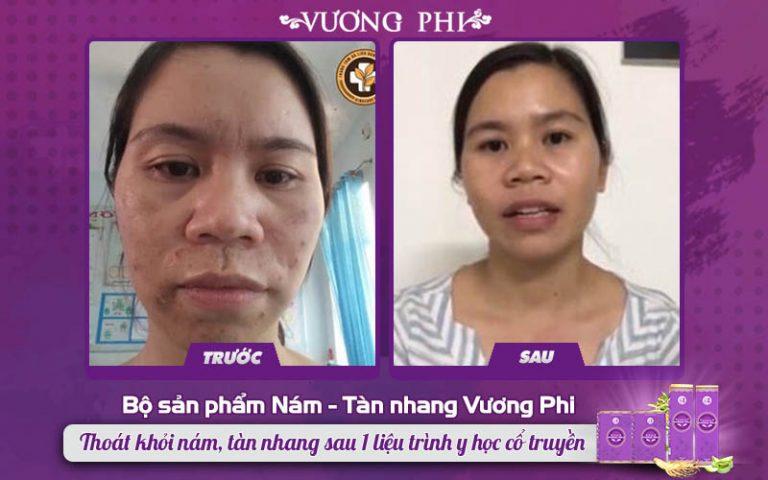 Tình trạng da mặt chị Nụ trước và sau khi sử dụng Vương Phi loại bỏ nám da và mụn